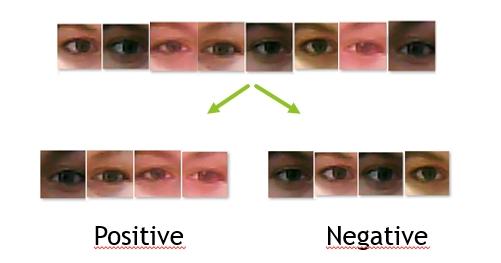 Eye-Shape Classification