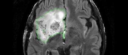 Segmentation of Brain Tumors from MRI using Adaptive Thresholding and Graph Cut Algorithm