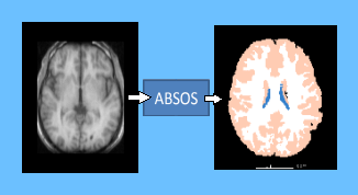 Automatic brain segmentation method based on supervoxels